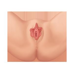 Labioplastia Vaginal Antes