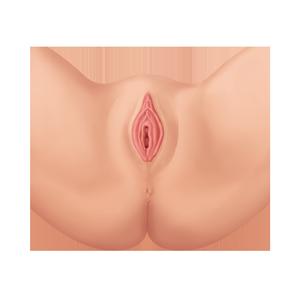 Labioplastia Vaginal Después